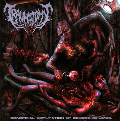 Traumatomy - Beneficial Amputation Of Excessive Limbs